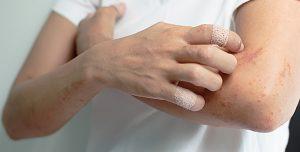 eczema-gratter_690x350-690x350
